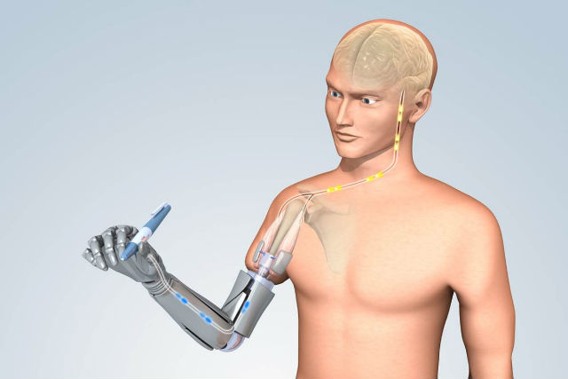 Robotic arm that could give amputees the sensation of touch